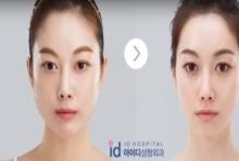 รีวิวศัลยกรรมเกาหลี จากเน็ตไอดอลเกาหลี