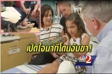 เปิดใจ!! เด็กหญิง 10 ขวบ นาทีง้างปากไอ้เข้ ขณะโดนงับขา หนีรอดในที่สุด!!(คลิป)