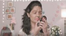 สะเทือนใจ สาวเหยื่อน้ำกรดสอนทาปาก สะท้อนปัญหาสังคมเรื่องนี้!?