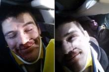 หนุ่มขับรถชนจนกระดูกหักหลายท่อน ยังยิ้มร่า ถ่ายเซลฟี่ได้
