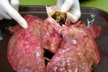 นี่คือสภาพปอด หลังอัดบุหรี่เข้าไป 60 มวน