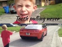 เจ๋งเวอร์! พ่อซิ่งรถสปอร์ต ถอนฟันให้ลูกชาย!