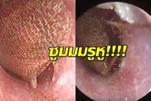 ซูมนาทีหมอดึงแมลงสาบเป็นๆ ออกมาจากรูหูคนไข้ (คลิป)