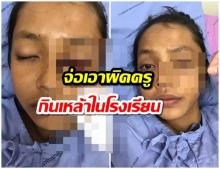 หวิดบอด! นักเรียน 14 เพื่อนเปิดขวดโซดาระเบิดใส่ตาทรมาน  (คลิป)