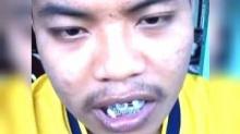 มีลั่น!! ก็แค่ดัดฟัน มันผิดตรงไหน??