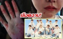 เลือดอาบ! แฟนคลับ Wanna One ทะเลาะกันระหว่างหนุ่มๆกำลังแสดงอยู่บนเวที (คลิป)