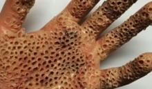 มันเป็นอย่างนี้นี่เอง!! แมลงที่ทำให้มือพรุน ที่แชร์กันสนั่นโซเซียล