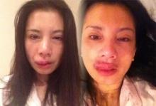 กานต์ ภรรยาเสก โลโซ โพสต์ภาพใบหน้าบวมช้ำจากการถูกทำร้าย
