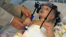 ฝ่ามฤตยู!! คุณหมอช่วยต่อหัวทารกน้อยประสบอุบัติเหตุได้สำเร็จ