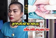 แม่รับผิด หมอถอนฟันลูก 4 ขวบ 18 ซี่ เหตุปล่อยขวดนมคาปาก ตามใจจนฟันผุ (คลิป)