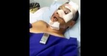 นาทีระทึก!!! หลวงพี่ศรีเมธ หนึ่งในผู้ประสบอุบัติเหตุรถทัวร์เบรกแตก เล่าวินาทีชีวิต