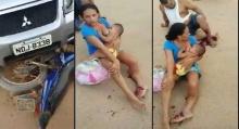 สุดยอดคุณแม่!! แม้จะโดนรถชนจนขาหัก แต่ก็ยังให้นมลูกน้อยดูดได้