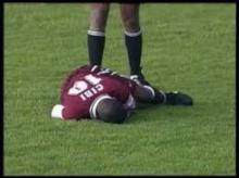 ฟ้าผ่านักฟุตบอลเกือบตายทั้งสนาม