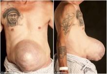 ไส้เลื่อนประหลาด!!ลุงป่วยมีก้อนเนื้อปูดที่หน้าท้อง